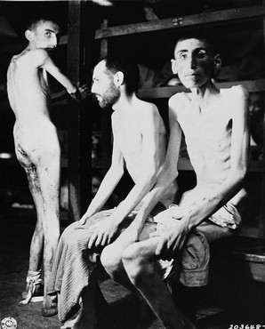 Buchenwald-Survivors-starvation-fatigue